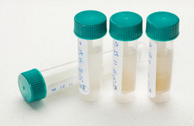 saliva testing vials