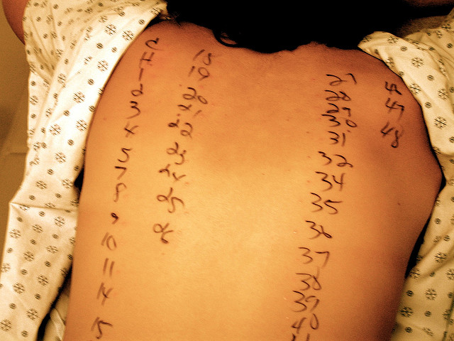 food allergy test by Flickr user brooke bina