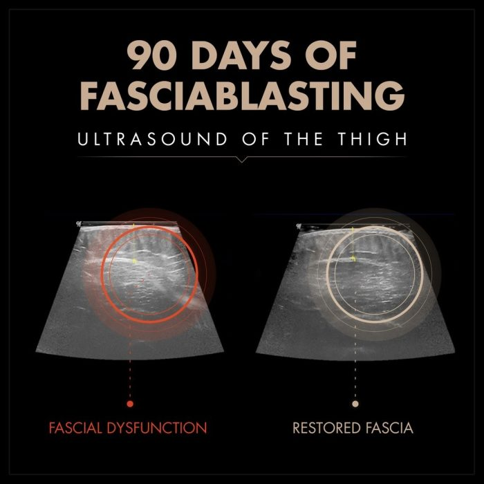90 days of fasciablasting